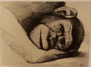 Больной Ганс. 1934